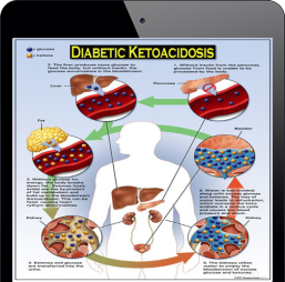 DIABETICKETOACIDOSIS2